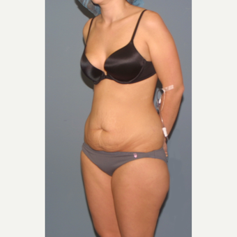 25-34 year old woman treated with Tummy Tuck before 3563563