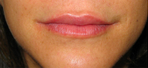 Lip Augmentation after 976121