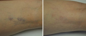 35-44 year old woman treated with Sclerotherapy before 2976609