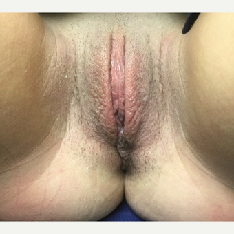 25-34 year old woman treated with Labiaplasty after 3306316