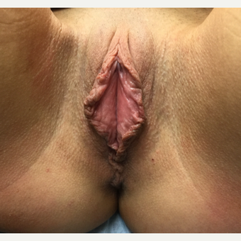 25-34 year old woman treated with Labiaplasty before 3306316