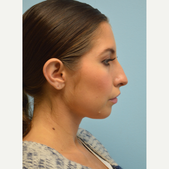 25-34 year old woman treated with Rhinoplasty before 3097855