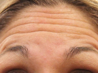 36 Year Old Female Treated For Forehead Wrinkles