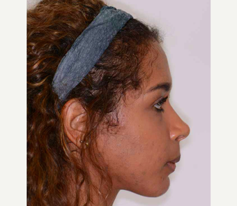 18-24 year old woman treated with Orthognathic Surgery after 2419075