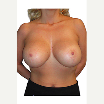 34 year old woman treated with Breast Lift after 3544790