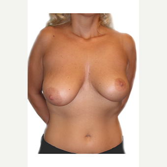 34 year old woman treated with Breast Lift before 3544790