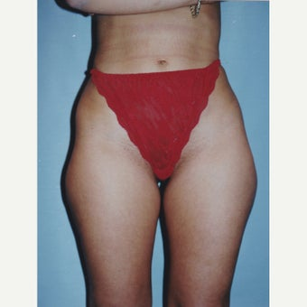 25-34 year old woman treated with Liposuction 1722592