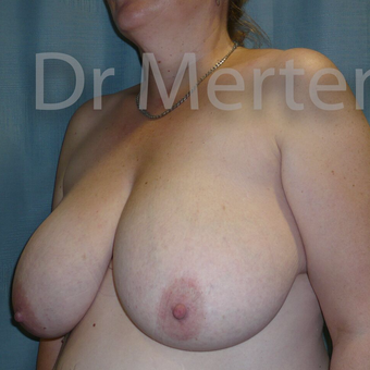 Breast Reduction before 3681279