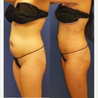 35-44 year old woman treated with Smart Lipo before 3041617
