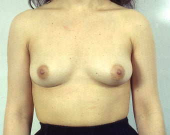 Breast Explant, Without Replacement Implants or Lift after 1523642