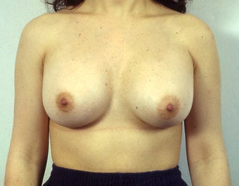 Breast Explant, Without Replacement Implants or Lift before 1523642