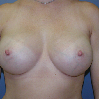 40 year old woman treated with Breast Implants after 3042609