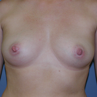 40 year old woman treated with Breast Implants before 3042609