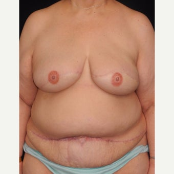 62 y/o - Delayed Bilateral DIEP Breast Flap Reconstruction after 1919814