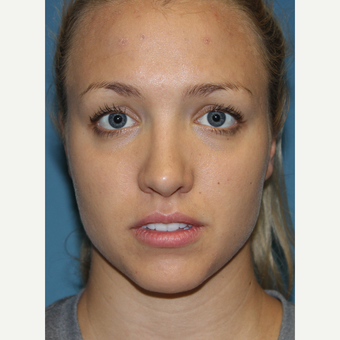 18-24 year old woman treated with Rhinoplasty after 3701857