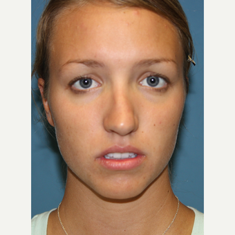 18-24 year old woman treated with Rhinoplasty before 3701857