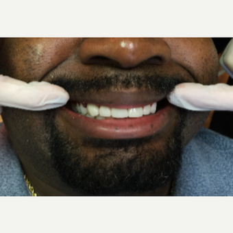 35-44 year old man treated with Porcelain Veneers