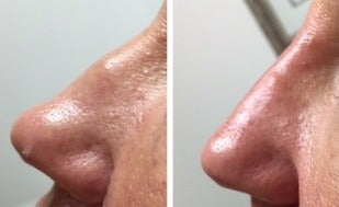 35-44 year old woman treated with Non Surgical Nose Job before 3065768
