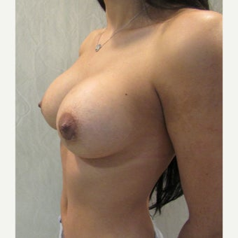18-24 year old man treated with Breast Augmentation after 2502060
