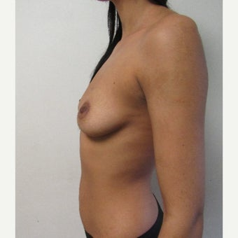 18-24 year old man treated with Breast Augmentation before 2502060