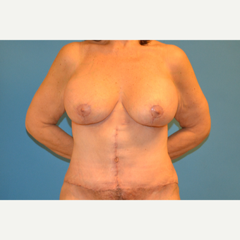 58 year old woman treated with breast lift with augmentation and fleur-des-lis abdominoplasty after 3095599