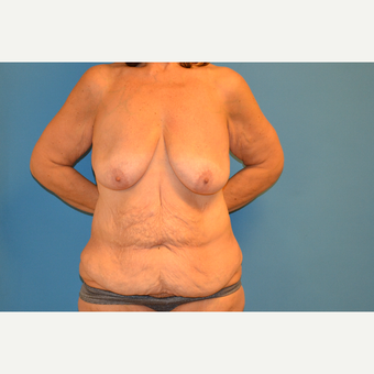 58 year old woman treated with breast lift with augmentation and fleur-des-lis abdominoplasty before 3095599
