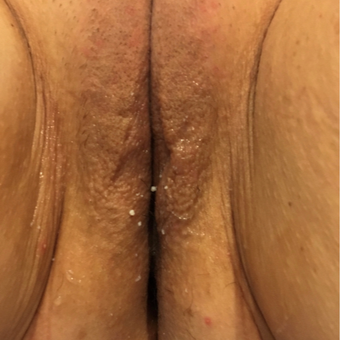 45-54 year old woman desire vaginal rejuvenation and reduction or urinary leakage before 3806817