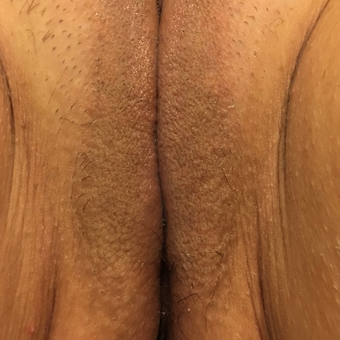 45-54 year old woman desire vaginal rejuvenation and reduction or urinary leakage after 3806817