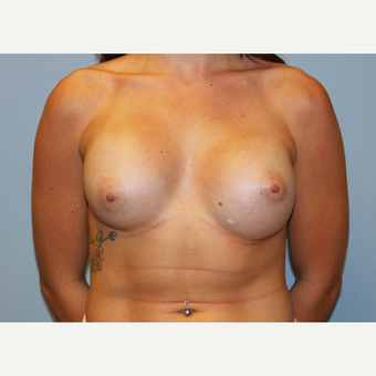 25-34 year old woman treated with Breast Augmentation after 3570370