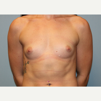 25-34 year old woman treated with Breast Augmentation before 3570370