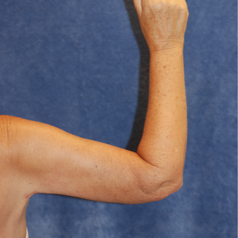 58 year old woman after brachioplasty/arm lift after 3129073
