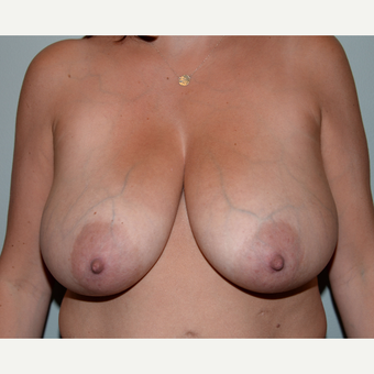 40 year old woman treated with Breast Reduction before 3455184