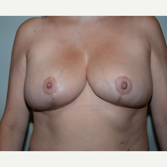 40 year old woman treated with Breast Reduction after 3455184