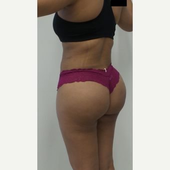 25-34 year old woman treated with Brazilian Butt Lift after 2814210