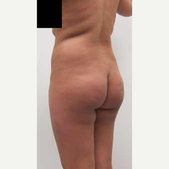 25-34 year old woman treated with Brazilian Butt Lift before 2814210