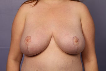 Breast Reduction and lift after 1120054
