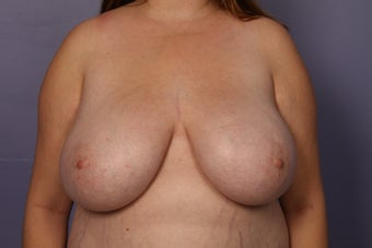 Breast Reduction and lift before 1120054