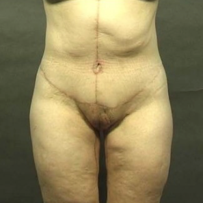 42 year old woman treated with Body Lift after 1719237
