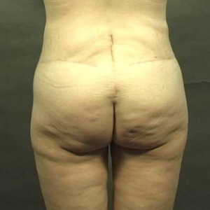 42 year old woman treated with Body Lift 1719237