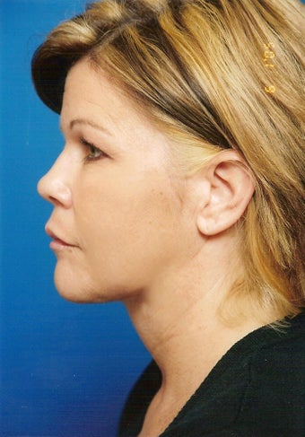 Neck Lift after 902854