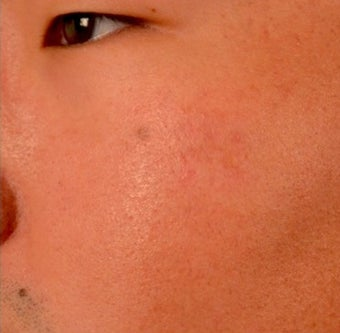 18-24 year old man treated with Microneedling after 2059267