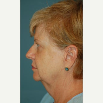 65-74 year old woman treated with Facelift before 2180481