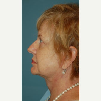 65-74 year old woman treated with Facelift after 2180481