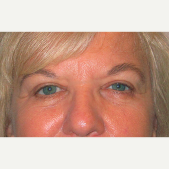 Eyelid Surgery (Blepharoplasty) after 3831671