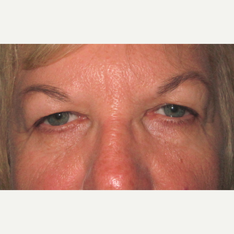 Eyelid Surgery (Blepharoplasty) before 3831671
