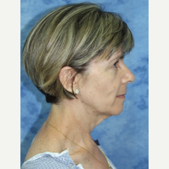 45-54 year old woman treated with Facelift before 3177856