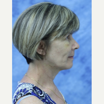 45-54 year old woman treated with Facelift after 3177856