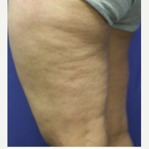 45-54 year old woman treated with Sclerotherapy after 2036974