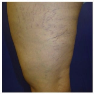 45-54 year old woman treated with Sclerotherapy before 2036974