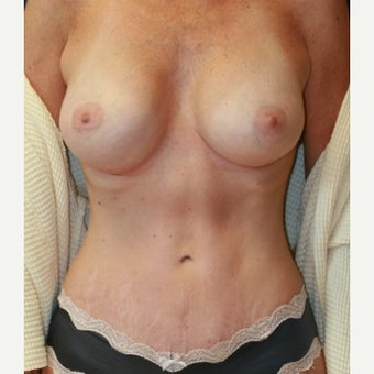 49 year old mother of two breast augmentation and tummy tuck Dr. Steve Laverson San Diego after 1590116